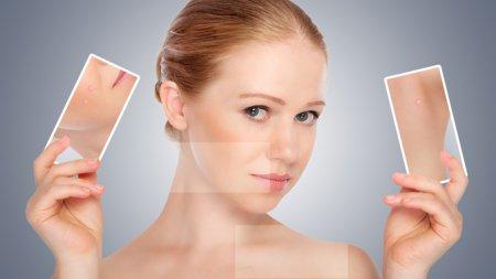Косметологи рассказали какая чистка лица лучше для проблемной кожи