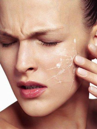 Думка косметолога: ТОП-5 масок для сухої шкіри обличчя