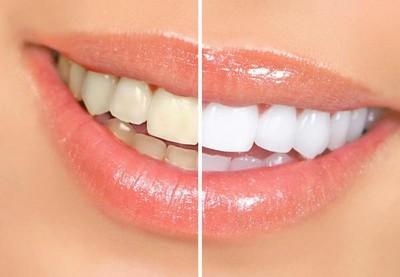 маски для отбеливания зубов