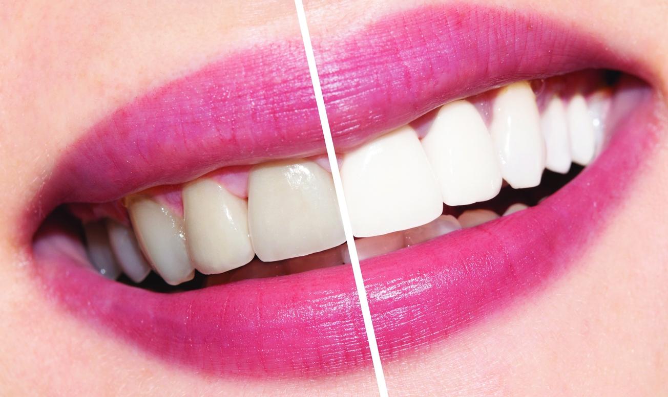 Відбілювання зубів  найкращі рецепти bff04faebdcca