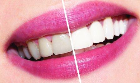 Отбеливания зубов: лучшие рецепты