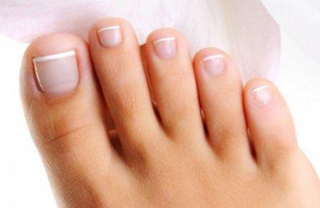 Педикюр: видалення врослого нігтя простим і безболісним способом
